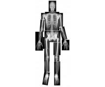 [Emberi test röntgenlapja]